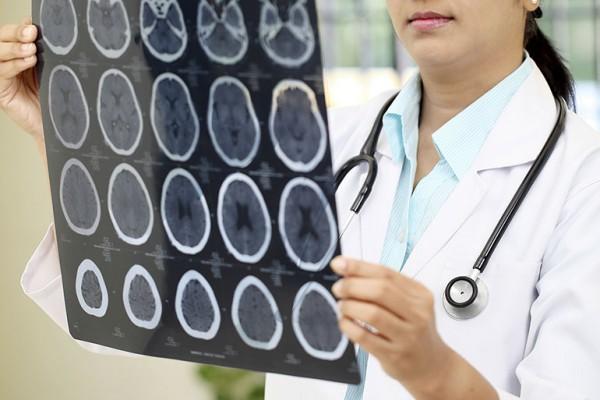 Doctora examinando una tomografía cerebral computarizada. Fito: www.latinodoctor.com